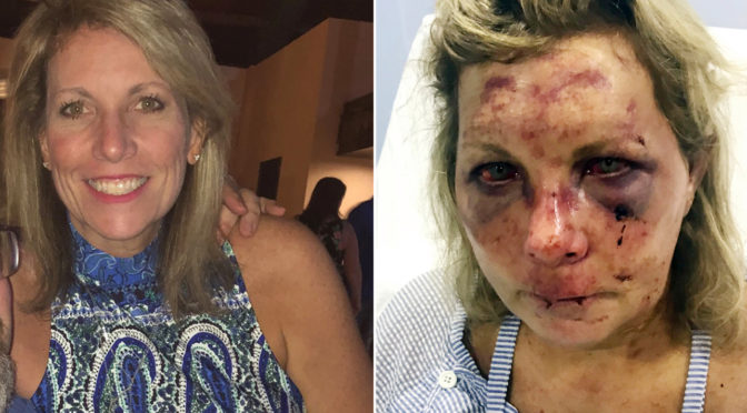 Dominican Republic resort temporarily closes after woman claims she was 'beaten' at hotel