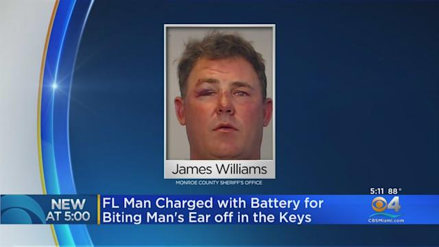 Tourist Accused Of Biting Part Of Man's Ear Off During Altercation At Keys' Hotel